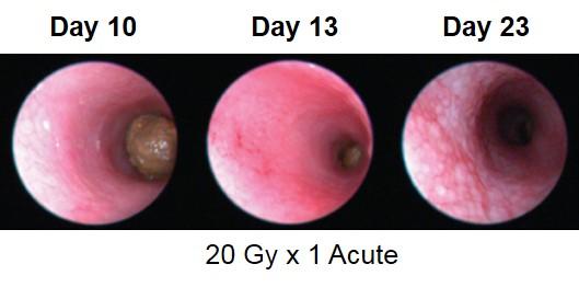 Proctitis Endoscopy Images