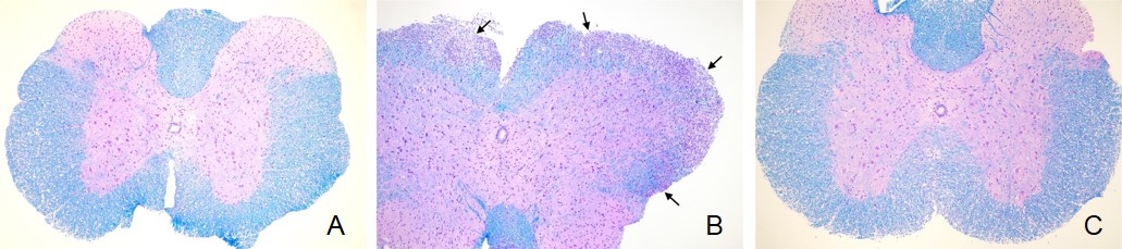 Cross sections of the spinal cord (5 micron) stained with Luxol Fast Blue and counterstained with Periodic acid-Schiff (PAS) stain. (A) Naive Animal: Non-Lesioned Spinal Cord, (B) Vehicle Control Animal: Areas of lymphocyte and macrophage infiltrates and neuroaxonal degeneration (arrows), (C) Fingolimod-treated Animal: Non-lesioned spinal cord.
