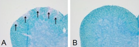 Cross sections of the spinal cord (5 micron) stained with Luxol Fast Blue and counterstained with Periodic acid-Schiff (PAS) stain. On the left is a representative photograph of a section taken from a mouse treated with PLP. One the right is a representative photograph of a section taken from a control mouse. Arrows highlight areas of depleted myelin.