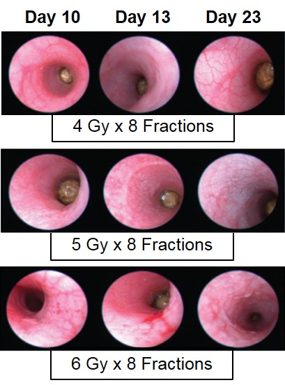 Endoscopy Proctitis Images