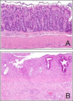 (A) Photomicrograph showing histological appearance of normal rectal mucosa. (B) Photomicrograph showing histological appearance of inflamed rectal mucosa.