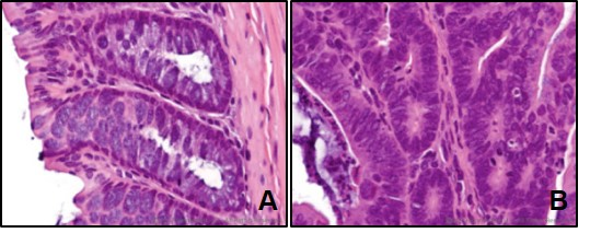 Cross Section of an H&E stained colon with polyp (A) Normal epithelium H&E stained epithelium at 60x, (B) Adenomatous Polyp H&E stained epithelium at 60x