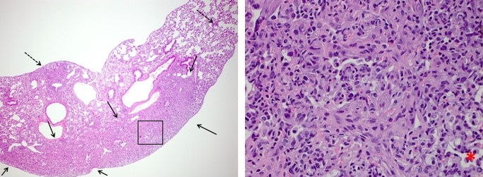(Left) Bleomycin-induced fibrosis: Ashcroft score = 6 (4x Magnification) Majority of space is effaced by fibrosis (bound by arrows) with secondary nodules of fibrosis (dashed arrows). (Right) Bleomycin-induced fibrosis: Ashcroft score = 6 (40x Magnification) Virtually entire field replaced by fibrosis with only a few scattered alveoli remaining visible (asterisk).