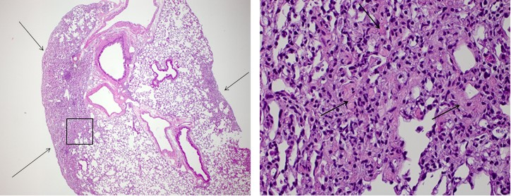 Bleomycin-induced fibrosis: (Left) Ashcroft score = 5 (4x Magnification) Arrows show areas of subpleural fibrosis that extend into pulmonary parenchyma and effacing ~30% of section. (Right) Bleomycin-induced fibrosis: Ashcroft score = 5 (40x Magnification) Alveolar walls thickened by fibrosis (most visible at arrows) admixed with scattered inflammatory cells