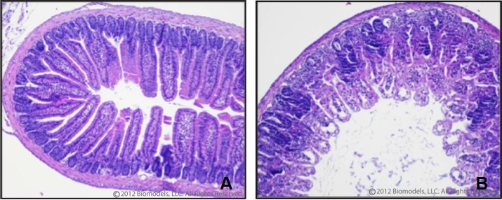 Images above represent the epithelial architecture of the villi and crypts of normal jejunum (A) and damaged jejunum (B) 4 days after exposure to radiation.