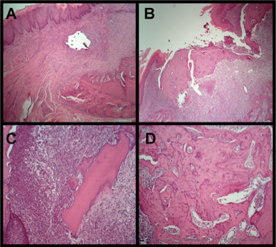 Representative histological sections to illustrate features of intact and ulcerated mucosa. Histological appearance (4X) of a specimen from a control animal sacrificed 28 days after the extraction of maxillary molars demonstrating intact epithelium overlying an inflammatory infiltrate and healing bone (Panel A). Panel B demonstrates ulceration overlying bony sequestra and marked inflammation. The specimen was taken for an animal treated with ZA/DX and obtained 28 days following extraction (4X). Sequestra of