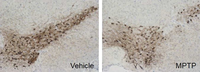 Tyrosine hydroxylase staining of the substantia nigra demonstrating MPTP induced dopaminergic neuron loss