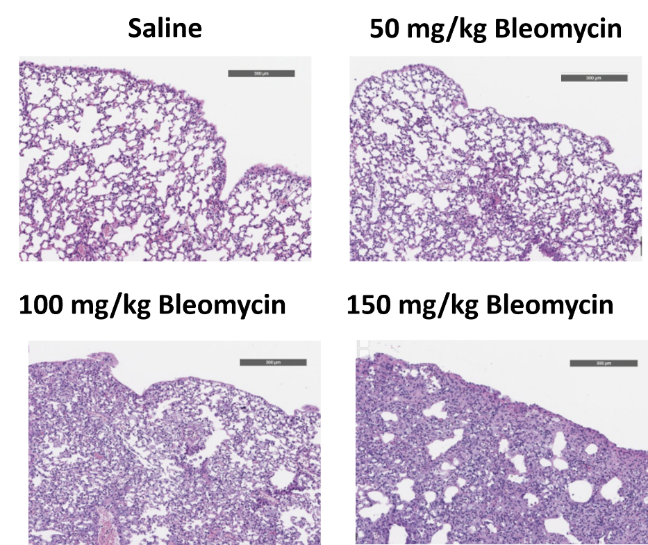 Dose dependent increases in fibrosis are observed histologically after subcutaneous osmotic pump-delivered bleomycin exposure