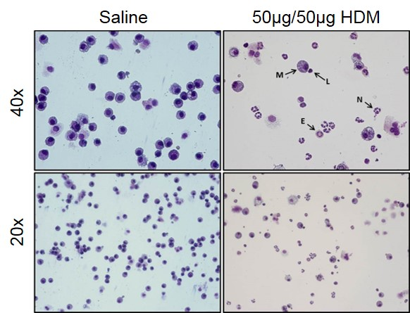 Images from control (saline) and severe asthma model (50µg/50µg HDM) BAL fluid.  Macrophages (M), Lymphocytes (L), Neutrophils (N), and Eosinophils (E) can all be observed in the BAL fluid from mice in the severe asthma model.