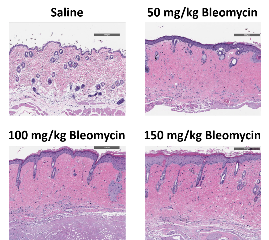Dose dependent increases in dermal fibrosis are observed histologically after subcutaneous osmotic pump-delivered bleomycin exposure